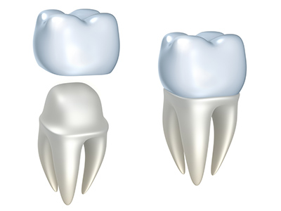How to Manage a Broken Dental Crown