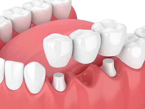 3D rendering of fixed dental bridges and implants at Metropolitan Dental Specialty Group