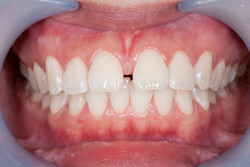 Do You Need a Frenectomy?